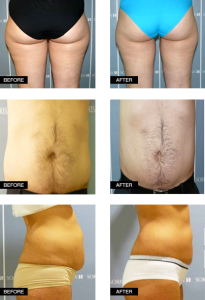 BODYTER_PREMIUM-before-after